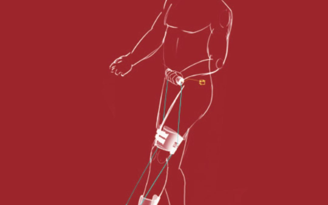 Walking aid project – eenzijdige loopstoornis hulpmiddel